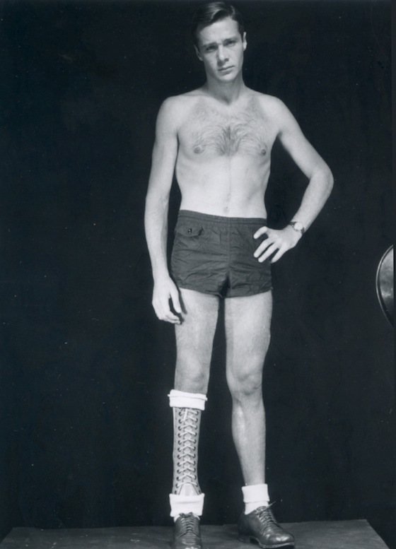 Photo: Unnamed veteran wearing prosthetic appliance, ca. 1949. Courtesy of the Otis Historical Archives, Armed Forces Institute of Pathology, National Museum of Health and Medicine, Washington, DC